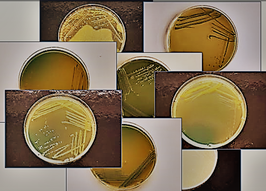 Acetic acid bacteria on the agar plates.